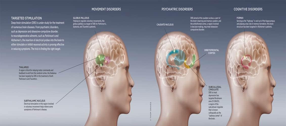 Estudio de estimulación cerebral FIDMAG